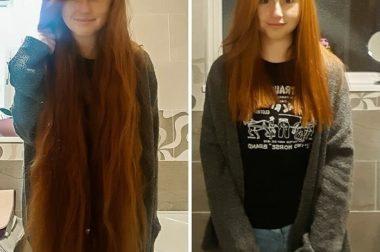 В КБР проведут акцию по донорству волос для онкобольных